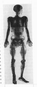 full body x ray